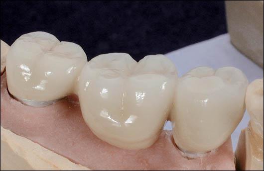 Cet appareil dentaire vous donnera le nom d'un jeu de cartes.