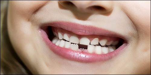 Combien l'homme possède des dents de lait ?