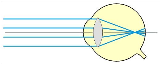 Qu'est-ce qu'un oeil myope ?