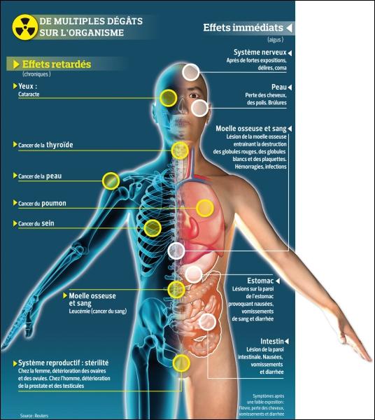 Après une longue exposition à une forte radioactivité, quels seront les effets immédiats sur l'homme ?