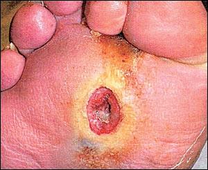Chez cet homme de 44 ans assujetti de longue date à l'insuline, l'anesthésie de la plante du pied est 'compliquée' d'ulcération sur saillie indolente de la tête du 2ème métatarsien. Que lui proposer ?