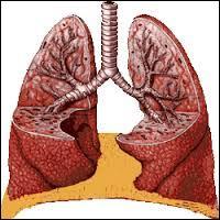 Un poumon...