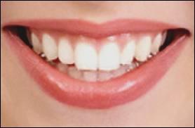 Dents : le mot se traduit par :