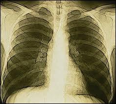 Le squelette de la cage thoracique est formé de combien de paires de côtes ?