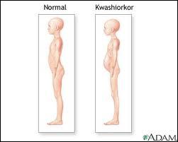 Une maladie de l'enfant (kwashiorkor) résulte d'une alimentation trop pauvre en ...