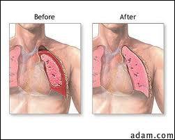 Complétez. La présence d'air dans la cavité pleurale (plèvres, cf. Q1) constitue ...