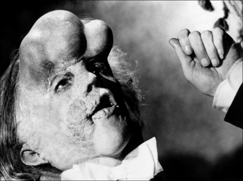 Elephant Man  film américain de David Lynch en 1980 était joué par :