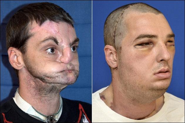 Nouveau visage pour Richard Norris cet Américain mutilé ; que lui était il arrivé ?