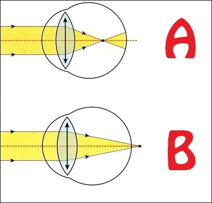 Quel schéma représente un œil dont le défaut de vision est la myopie ?