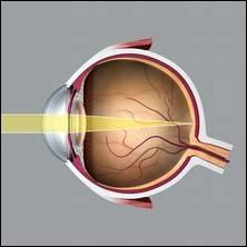 Un œil normal, c'est-à-dire un œil qui ne présente aucun défaut de vision, est un œil...