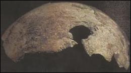 Il reste dans les archives du KGB un fragment de crâne présenté officiellement comme celui d'Hitler. Quelles ont été les conclusions du scientifique américain chargé de l'analyser en 2009 ?
