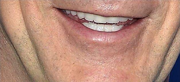 Dents des stars