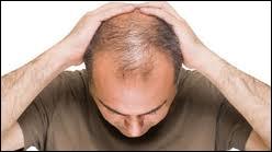 Pour certains, la calvitie, plus fréquente chez les hommes que chez les femmes, serait due notamment aux hormones mâles qui auraient une influence négative sur la pousse des cheveux. Ont-ils raison ?