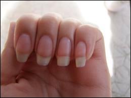 Comment s'appelle le blanc de l'ongle ?