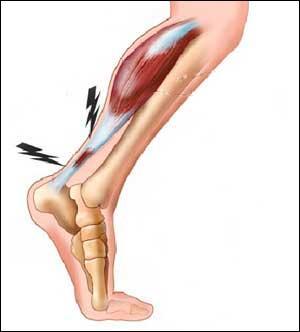 Le tendon d'Achille se trouve dans le mollet.