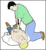 Intéressons-nous à présent à l'arrêt cardio-respiratoire. À quelle fréquence le massage cardiaque doit-il se faire pour être efficace ?