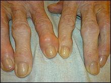 L'arthrose touche beaucoup de personnes et peut être très invalidante. Le gouvernement parle de dérembourser prochainement l'un des traitements de l'arthrose, lequel ?