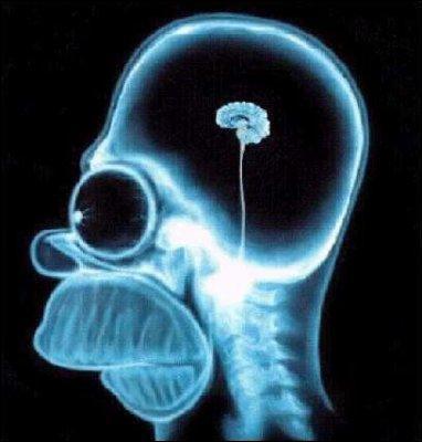 Dans un épisode, on découvre qu'un crayon de couleur resté coincé dans le cerveau d' Homer serait à l'origine de sa stupidité. De quelle couleur était ce crayon ?