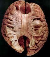 Le cerveau est composé de 2 hémisphères (droit et gauche) qui sont connectés par ...