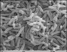 (Médecine) Comment le choléra est-il généralement transmis à l'homme ?