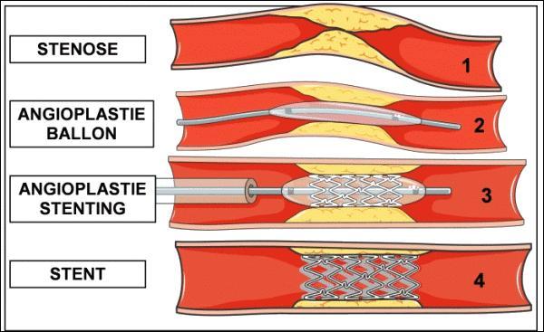 Quel examen coronaire précoce est plus efficace que la thrombolyse, dans les 6 premières heures suivant le début de la douleur liée à l'infarctus du myocarde ?