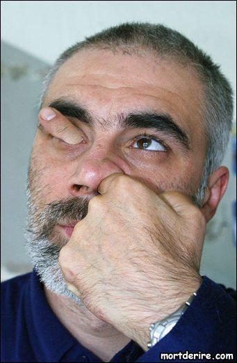Si vous vous 'mettez le doigt dans l'oeil' , c'est que :