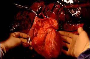 Cet organe est indispensable à la vie de tout être humain. C'est un muscle creux qui assure la circulation du sang grâce aux battements. C'est une sorte de pompe. De quel organe s'agit-il ?