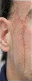 Cette cicatrice appartient à :