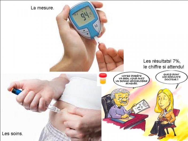 Le diabète est une maladie grave qui n'est soignée que depuis peu de temps avec l'insuline (1921). Pour savoir si une personne est atteinte, il y a plusieurs méthodes, la mesure de la glycémie à jeun, la mesure de l'hémoglobine glyquée... A votre avis comment faisaient les médecins des temps anciens pour savoir si leurs patients étaient atteints de cette maladie ?