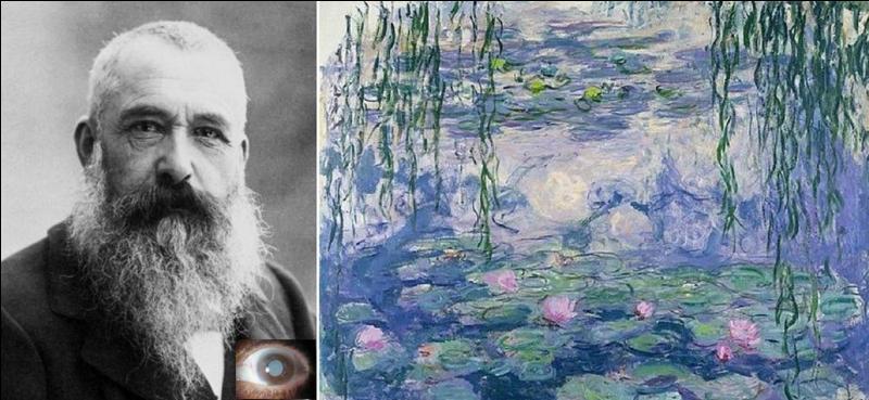 Claude Monet, un des fondateurs de l'impressionnisme a subi un problème de santé que les spécialistes peuvent remarquer simplement en étudiant ses œuvres. A votre avis, quel était ce problème ?