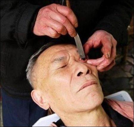 Pour nettoyer nos yeux au couteau, allons dans la province chinoise du Sichuan. Cette ancienne et peu commune tradition est effectuée par :