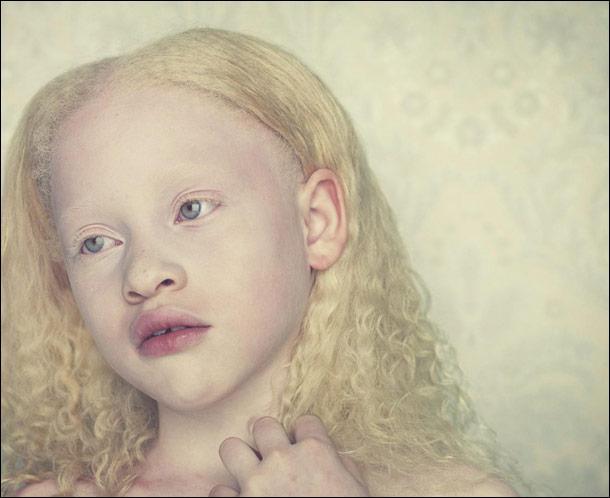 À quoi est dû l'albinisme ?