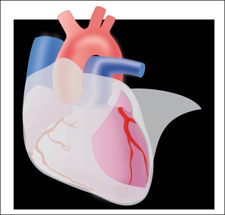 Comment s'appelle l'infection de la paroi qui tapisse l'intérieur du coeur ?