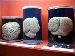 Ces bocaux contiennent des cerveaux d'éléphants, une espèce animale très intelligente. Quel est son poids ? Celui du cerveau bien sûr !