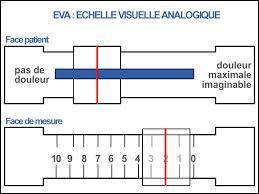 En médecine, l'échelle visuelle analogique permet d'évaluer facilement l'importance de divers symptômes. Lequel de ces symptômes ne peut être évalué par cette méthode ?