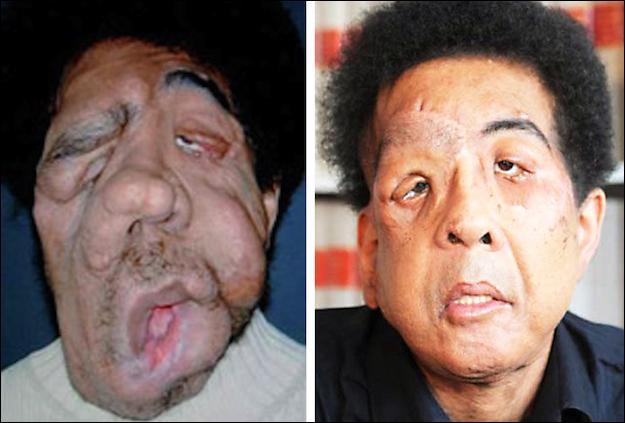 Le professeur Lantieri dont les médias ont beaucoup parlé a effectué une greffe complète de visage sur un homme dont le visage était complètement déformé par un genre de tumeurs. Quel es le nom de cette maladie ?