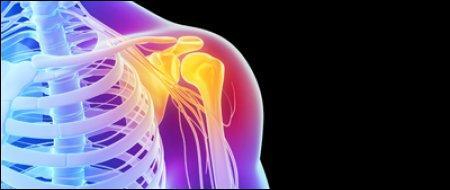 """La """"capsulite"""" est une inflammation de la synoviale qui provoque une fibrose de la capsule articulaire de l'épaule. Quels sportifs sont plus particulièrement touchés ?"""