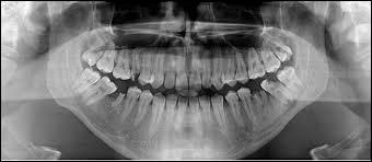 Bien que l'on n'ait que 32 dents, la nomenclature utilisée par les dentistes pour repérer les dents compte une dent 46. Quelle est cette dent ?