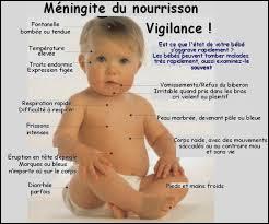 Le syndrome méningé est caractérisé par :