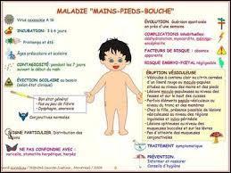 Le syndrome PMB est accompagné d'une très forte fièvre.