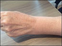 C'est dans le poignet que l'on trouve cet os appelé « l'astragale ».