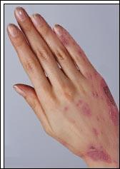 Terme médical désignant un syndrome pouvant correspondre à plusieurs maladies de la peau :