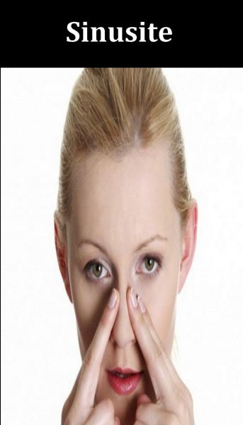 Quel est le bon remède pour soulager les sinusites ?