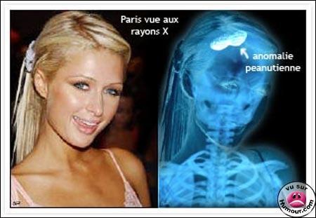 Citation de Paris Hilton, qui a travaillé dur pour la trouver : On a besoin des animaux, le jaguar pour la voiture, le vison pour la fourrure, ...