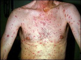 Quelle est l'orthographe correcte du nom de cette maladie ?