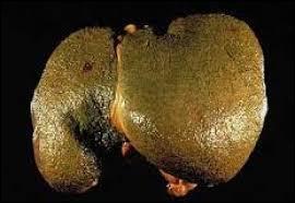 Quel organe est atteint si vous souffrez d'hépatite ?