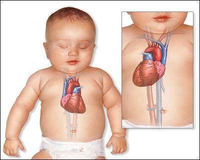 Le pouls normal d'un nourrisson est d'environ 80 pulsations par minute. Est-ce vrai ou faux ?