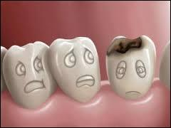 Moi, je mange beaucoup de sucreries; en plus, ça fait longtemps que je n'ai pas traité mes dents et maintenant, elles me font mal. Quel spécialiste dois-je consulter ?