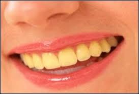 Sois honnête, comment sont tes dents, actuellement ?
