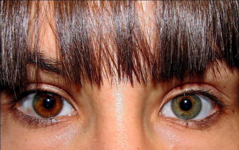 Comment appelle-t-on le fait d'avoir des yeux de couleurs différentes ?